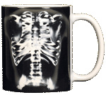 Skeleton X-Ray Ceramic Mug