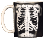 Skeleton X-Ray Ceramic Mug - Front